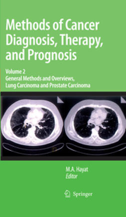 Hayat, M. A. - General Methods and Overviews, Lung Carcinoma and Prostate Carcinoma, e-kirja