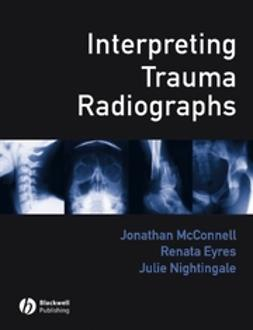 Eyres, Renata - Interpreting Trauma Radiographs, ebook