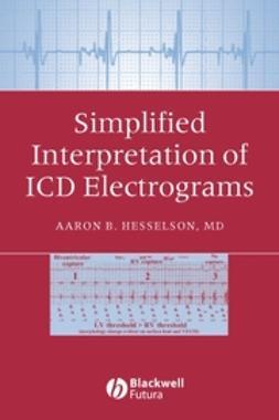 Hesselson, Aaron B. - Simplified Interpretation of ICD Electrograms, ebook