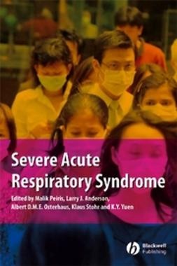 Anderson, Larry J. - Severe Acute Respiratory Syndrome: A Clinical Guide, e-bok