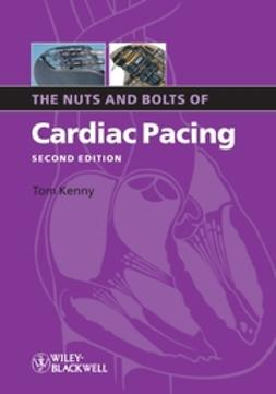 Kenny, Tom - The Nuts and Bolts of Cardiac Pacing, e-bok