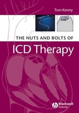 Kenny, Tom - The Nuts and Bolts of ICD Therapy, ebook