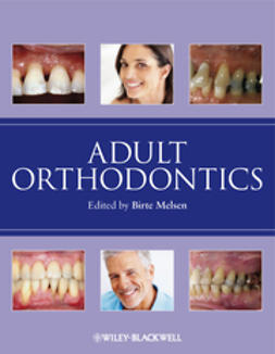 Melsen, Birte - Adult Orthodontics, ebook