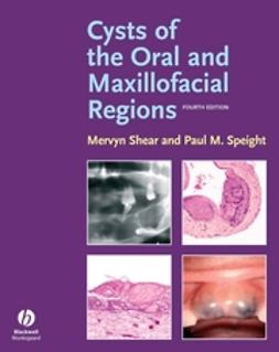 Shear, Mervyn - Cysts of the Oral and Maxillofacial Regions, ebook