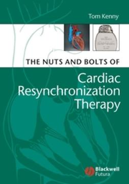Kenny, Tom - The Nuts and Bolts of Cardiac Resynchronization Therapy, ebook