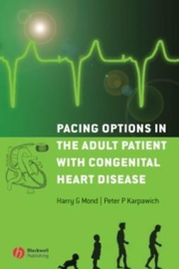 Mond, Harry G. - Pacing Options in the Adult Patient with Congenital Heart Disease, e-kirja