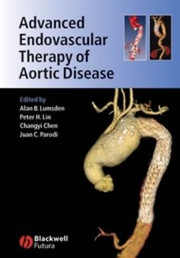 Chen, Changyi - Advanced Endovascular Therapy of Aortic Disease, ebook