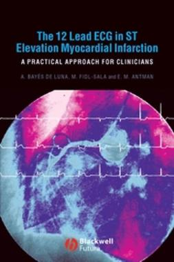 Antman, Elliot M. - The 12 Lead ECG in ST Elevation Myocardial Infarction: A Practical Approcah for Clinicians, ebook
