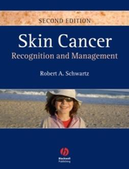 Schwartz, Robert A. - Skin Cancer: Recognition and Management, ebook
