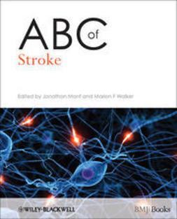 Mant, Jonathan - ABC of Stroke, e-bok