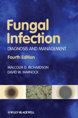 Richardson, Malcolm D. - Fungal Infection: Diagnosis and Management, ebook