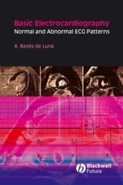 Luna, Antoni Bayés de - Basic Electrocardiography: Normal and Abnormal ECG Patterns, ebook