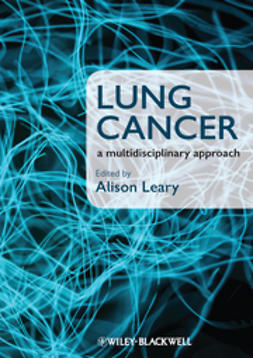 Leary, Alison - Lung Cancer: A Multidisciplinary Approach, ebook
