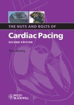 Kenny, Tom - The Nuts and Bolts of Cardiac Pacing, ebook