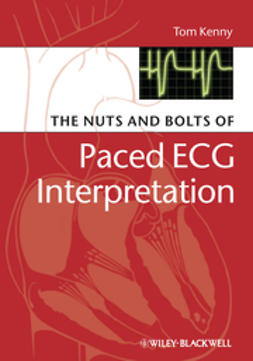 Kenny, Tom - The Nuts and bolts of Paced ECG Interpretation, ebook