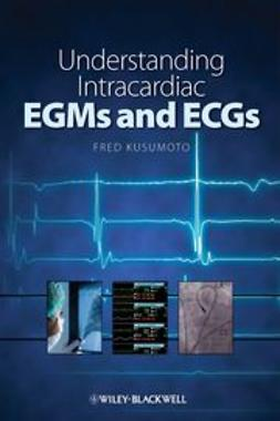 Kusumoto, Fred - Understanding Intracardiac EGMs and ECGs, e-bok