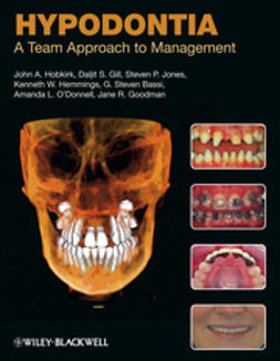Hobkirk, John A. - Hypodontia: A Team Approach to Management, e-bok