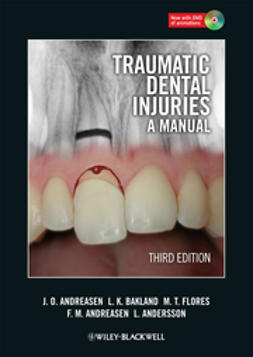 Andreasen, Jens O. - Traumatic Dental Injuries: A Manual, e-bok