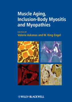 Askanas, Valerie - Muscle Aging, Inclusion-Body Myositis and Myopathies, ebook