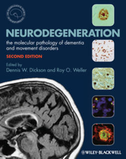 Dickson, Dennis - Neurodegeneration: The Molecular Pathology of Dementia and Movement Disorders, ebook