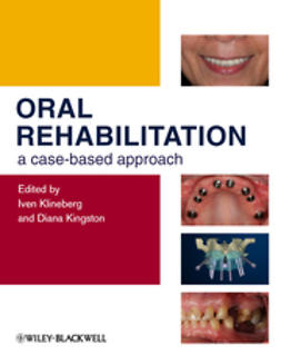 Klineberg, Iven - Oral Rehabilitation: A Case-Based Approach, ebook