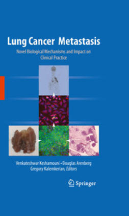 Keshamouni, Venkateshwar - Lung Cancer Metastasis, ebook