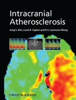 Kim, Jong S. - Intracranial Atherosclerosis, ebook