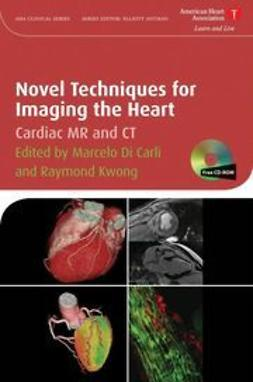 Carli, Marcelo F. Di - Novel Techniques for Imaging the Heart: Cardiac MR and CT, ebook