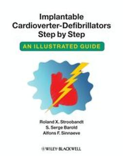 Stroobandt, Roland X. - Implantable Cardioverter-Defibrillators Step by Step: An Illustrated Guide, ebook