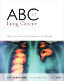 Hunt, Ian - ABC of Lung Cancer, ebook
