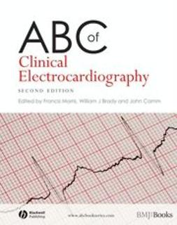 Morris, Francis - ABC of Clinical Electrocardiography, ebook