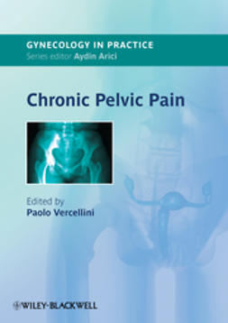 Vercellini, Paolo - Chronic Pelvic Pain, ebook