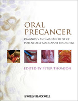 Thomson, Peter - Oral Precancer: Diagnosis and Management of Potentially Malignant Disorders, ebook
