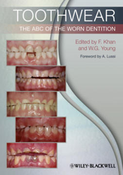 Khan, Farid - Toothwear: The ABC of the Worn Dentition, e-bok