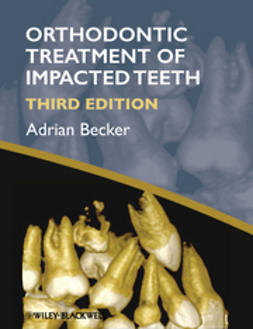 Becker, Adrian - Orthodontic Treatment of Impacted Teeth, ebook