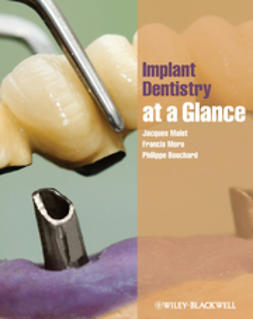 Malet, Jacques - Implant Dentistry At-a-Glance, e-bok