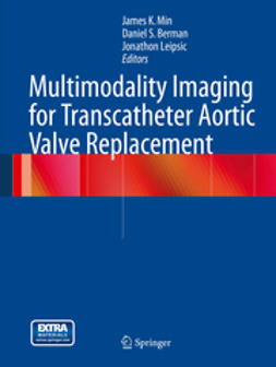 Min, James K. - Multimodality Imaging for Transcatheter Aortic Valve Replacement, ebook