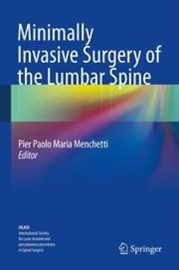 Menchetti, Pier Paolo Maria - Minimally Invasive Surgery of the Lumbar Spine, ebook