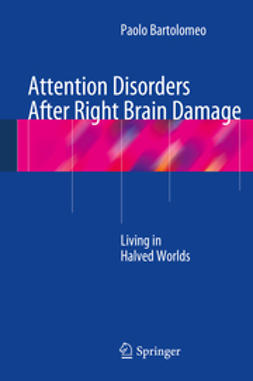 Bartolomeo, Paolo - Attention Disorders After Right Brain Damage, ebook