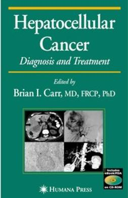 Carr, Brian I. - Hepatocellular Cancer, ebook