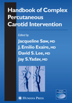 Exaire, J. Emilio - Handbook Of Complex Percutaneous Carotid Intervention, e-bok