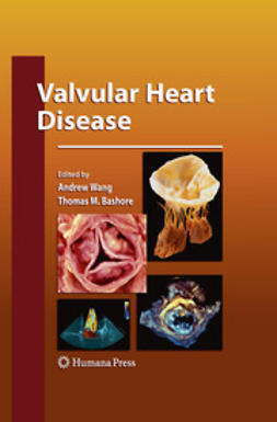 Wang, Andrew - Valvular Heart Disease, ebook
