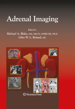 Blake, Michael A. - Adrenal Imaging, ebook