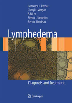 Tretbar, Lawrence L. - Lymphedema, ebook