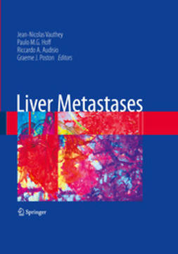 Poston, Graeme J. - Liver Metastases, ebook