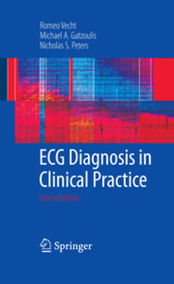 Peters, Nicholas - ECG Diagnosis in Clinical Practice, e-kirja