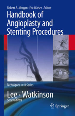 Morgan, Robert A. - Handbook of Angioplasty and Stenting Procedures, e-bok