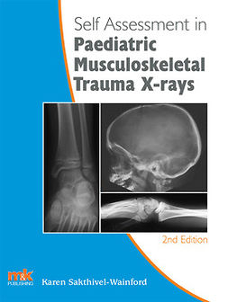 Sakthivel-Wainford, Sarah - Self-assessment in Paediatric Musculoskeletal Trauma X-rays, e-kirja