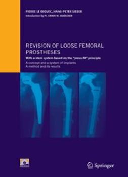 Béguec, Pierre - Revision of Loose Femoral Prostheses, ebook