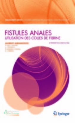 Abramowitz, Laurent - Fistules anales, ebook
